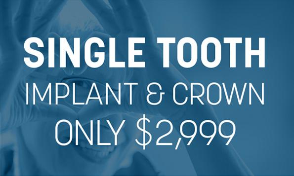 dental implant offer